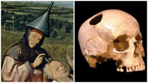 Trepanation: The Legacy Of Ancient Head Surgery
