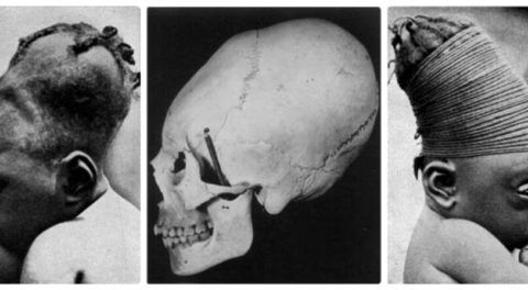 Ancient Practice Of Head Elongation: Why Early Humans Reshaped Their Skulls