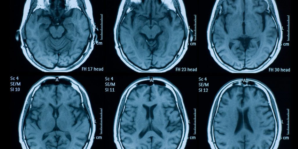 Brain Scans Could Reveal Criminal Intentions: Experts Say
