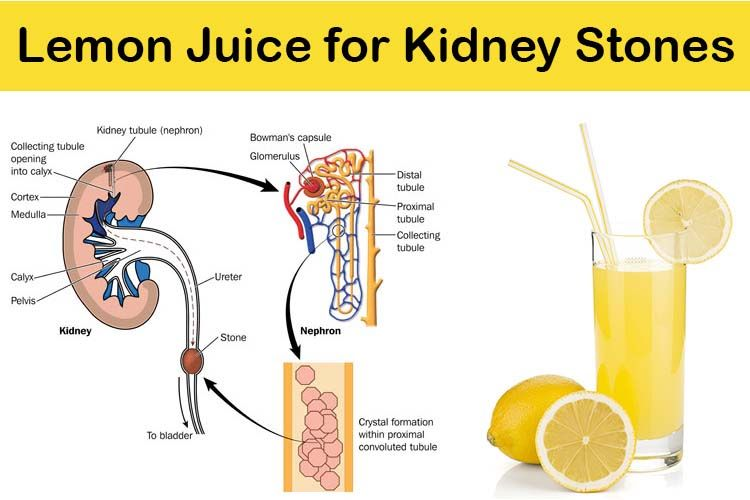 lemon-juice-for-kidney-stones_1
