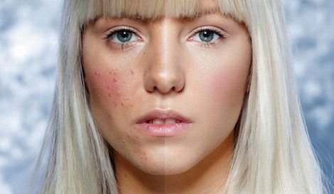 acne-ageing-2