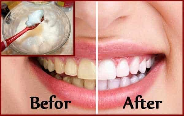 teeth-whitening-baking-soda-1