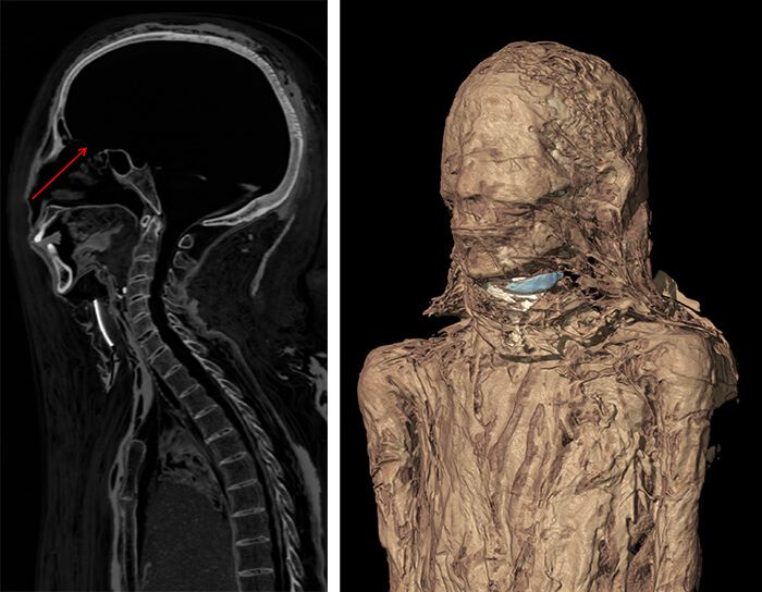 establishing-novel-paradigm-with-x-ray-reconstruction-of-egyptian-mummies7-1