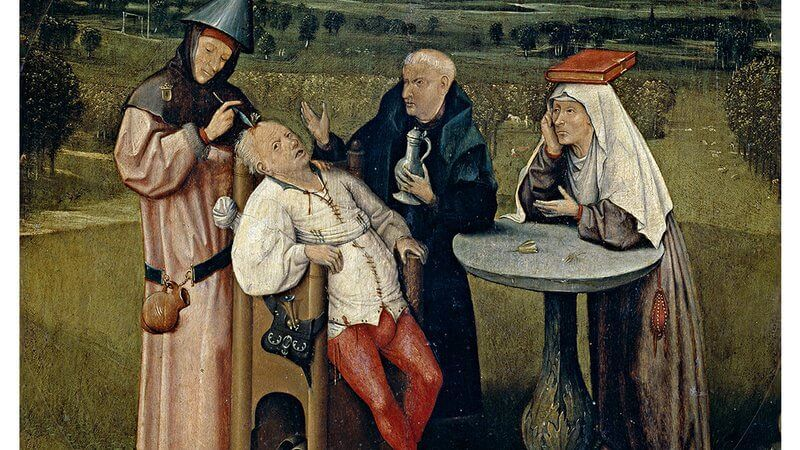 trepanation-in-medieval-time-1