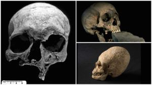 0 Of The Strangest Skulls Ever Discovered