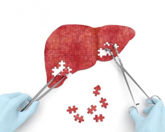 non-alcoholic-fattyliver-disease